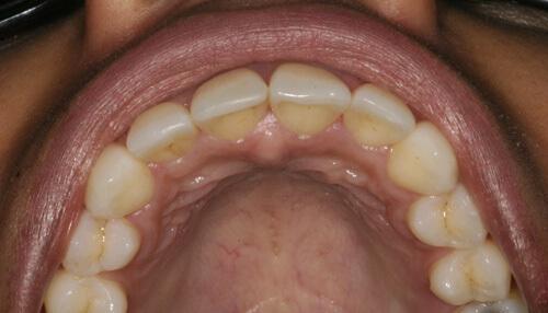 Zahnzentrum Ennigerloh - ClearSmile Inman Aligner - Gerade Zähne Vorher Nachher