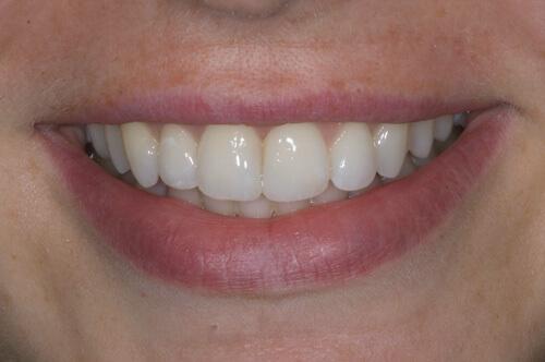 Zahnzentrum Ennigerloh ClearSmile Inman Aligner Gerade Zähne mit ABC-Konzept Vorher Nachher